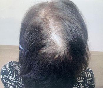 63歳女性