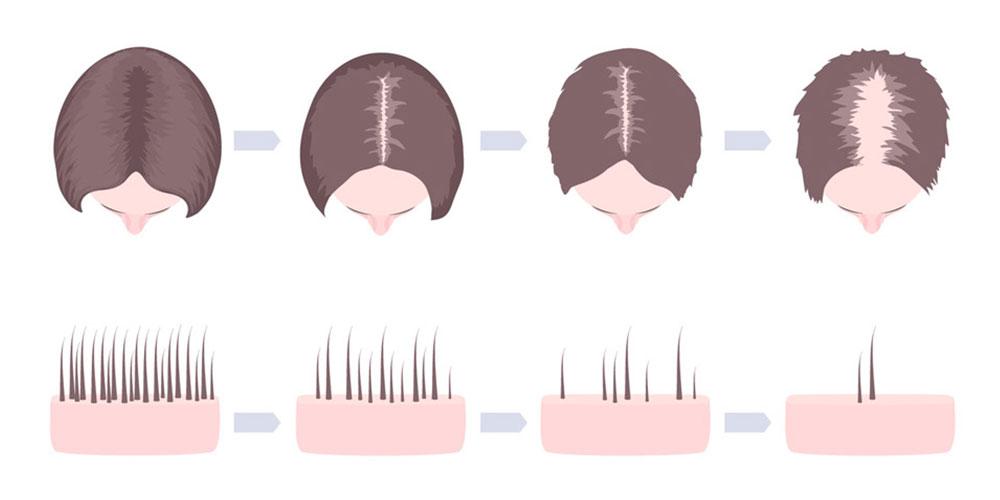 頭皮の血流